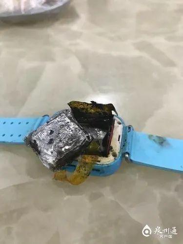 电话手表自燃4岁女童手背被烧伤